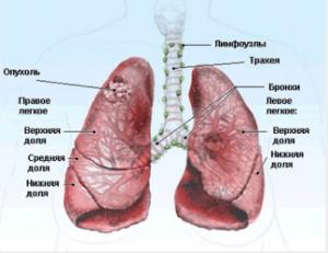 Рак легких 4 степени