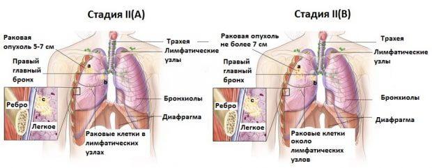 Симптомы рака легких на 3 стадии