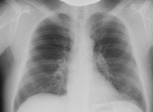 Заболевание рак легких