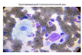 Умеренно дифференцированный плоскоклеточный рак легкого