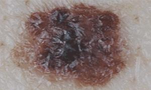 Меланома кожи на фото