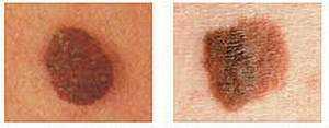 Что такое рак меланома thumbnail