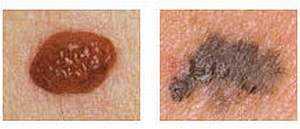 Как выглядит меланома кожи, фото начальная стадия