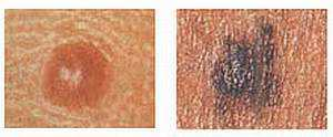 Размер меланомы