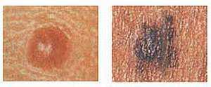 Раковое заболевание кожи меланома thumbnail