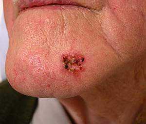 Меланома кожи лица