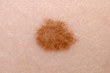 Меланома 3 стадии