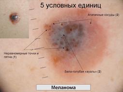 Меланома 4 стадии