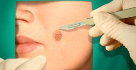 Методы лечения меланомы