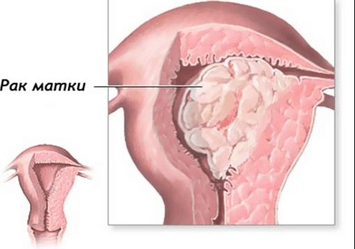 Рак матки: видысимптомы, лечение
