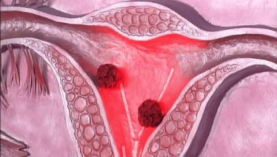 Рак матки 4 степени