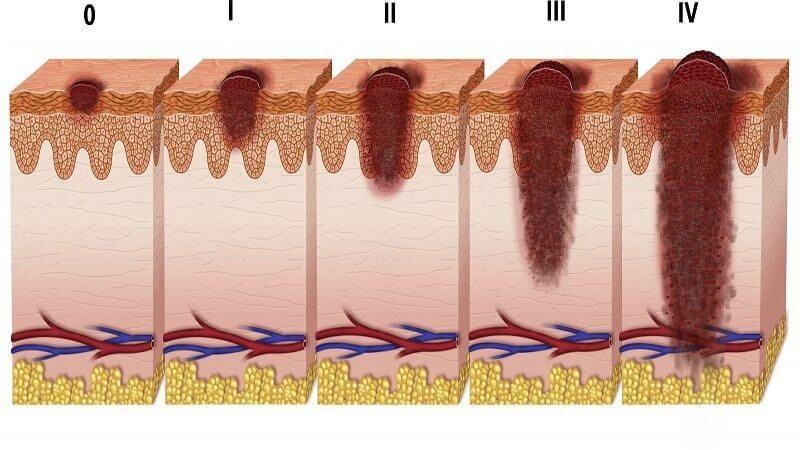 Как быстро развивается меланома