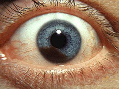 Меланома глаза (ХОРИОИДЕИ)