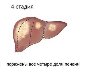 Чем опасен рак печени 4 степени