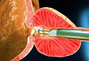Вапоризация аденомы