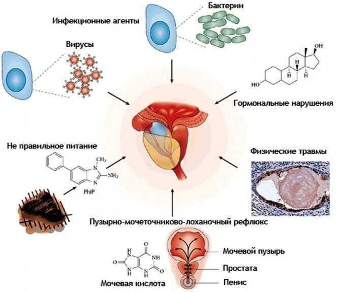 Причины и симптомы рака простаты