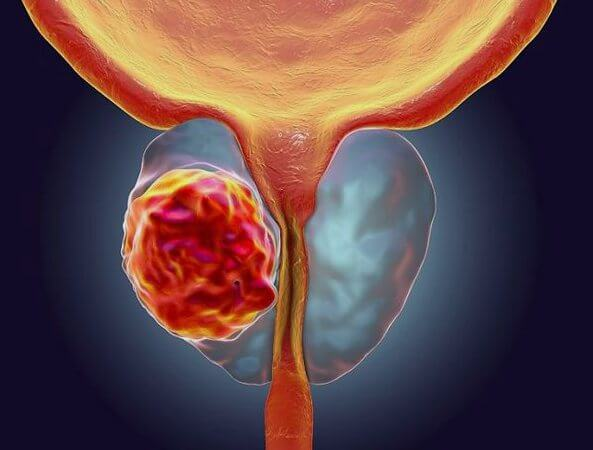 Рак предстательной железы, прогноз
