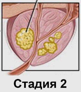 Рак простаты 2 степени - миниатюра
