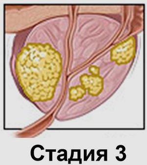 Рак простаты 3 степени - миниатюра