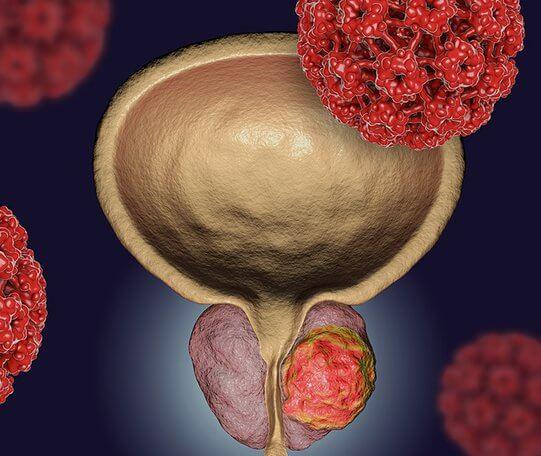 Рак 4 степени с метастазами