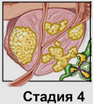 рак 4 степени - миниатюра