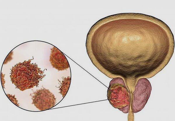 Прогноз выживаемости при раке предстательной железы