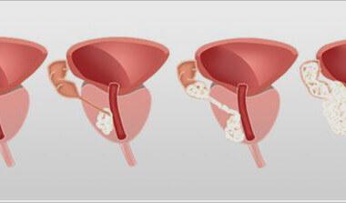 Симптомы рака простаты 2 степени