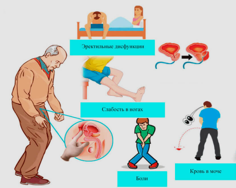симптомы рака предстательной железы