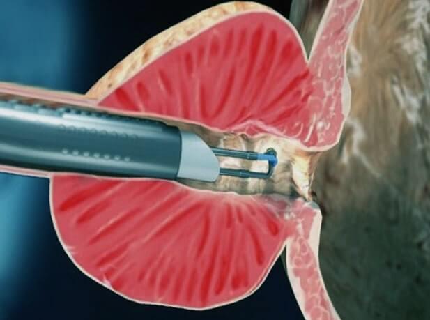 Восстановление после удаления предстательной железы