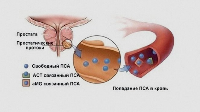 Норма ПСА при раке простаты