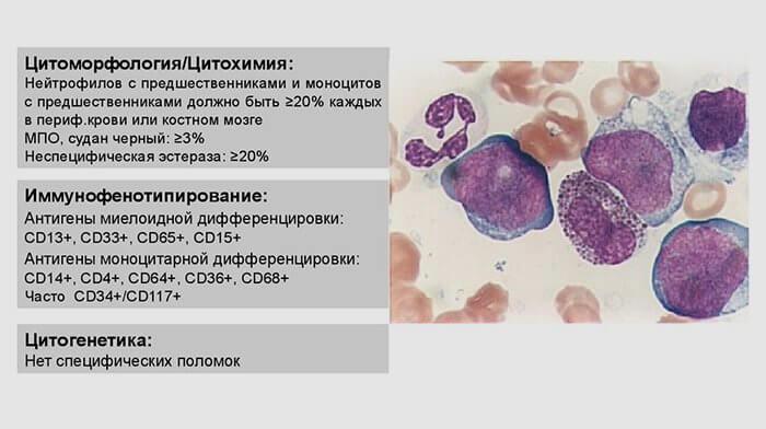 острый миелобластный лейкоз прогноз жизни
