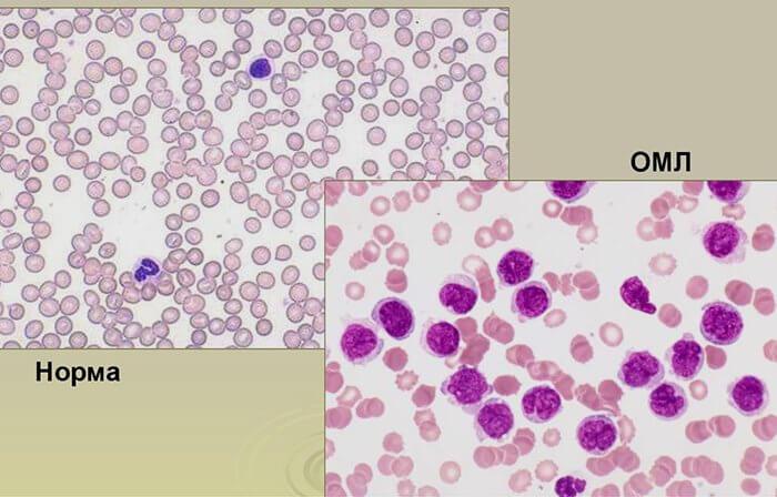 острый миелобластный лейкоз прогноз