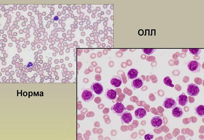 Причины острого лимфобластного лейкоза