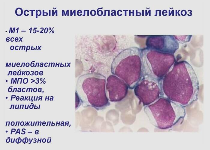 острый миелоидный лейкоз прогноз